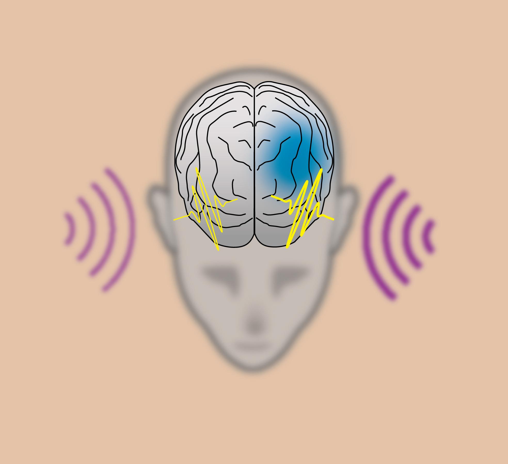 """cientistas """"limpam"""" placas de Alzheimer do cérebro de ratos usando unicamente luz e som"""